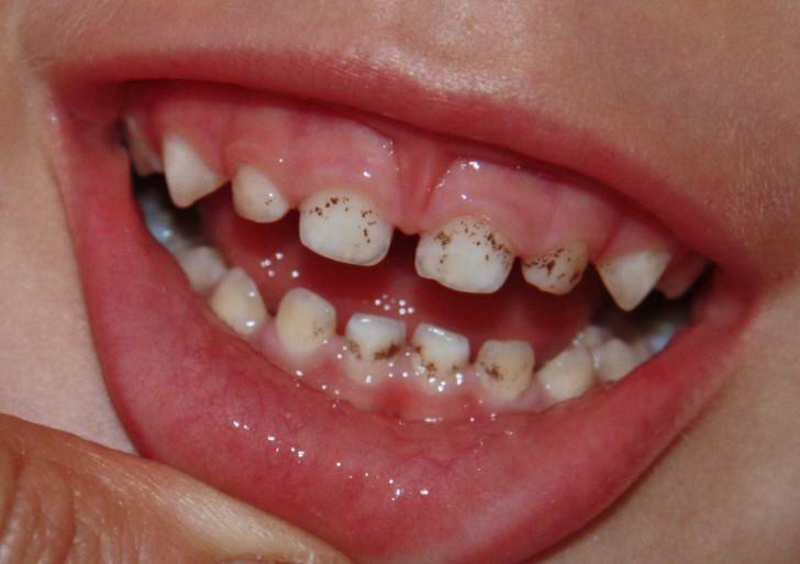 Почему у ребенка чернеют зубы постоянные