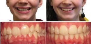 Чем можно подпилить зуб в домашних условиях