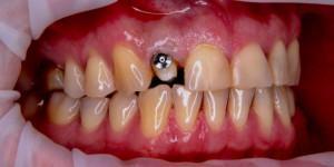 Как почистить зуб под коронкой