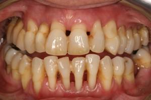 Современные предметы гигиены рта - Реферат