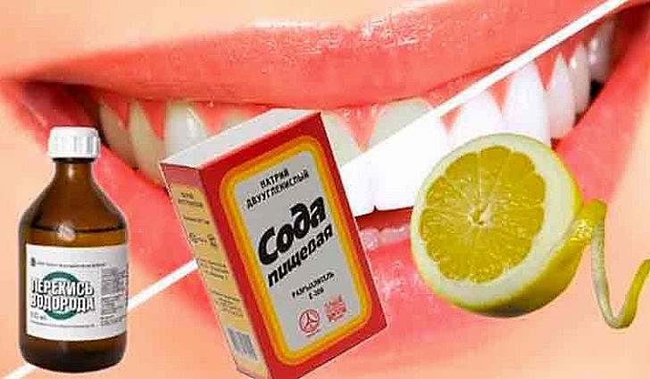 Народные средства от зубного камня