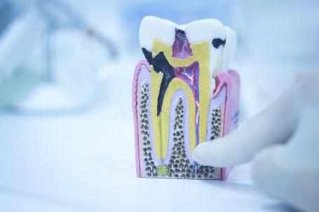 Анатомическое и гистологическое строение зуба