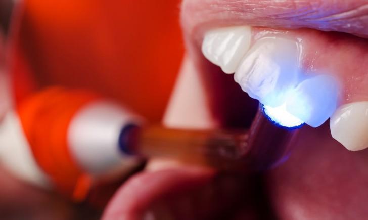 Пломба на зуб – Виды, характеристики, материалы, цены зубных пломб
