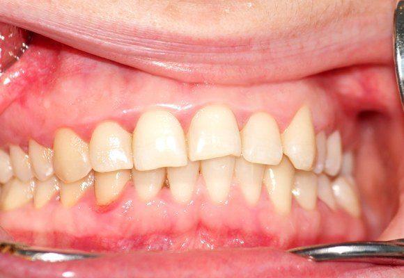Остеотомия нижней челюсти и верхней