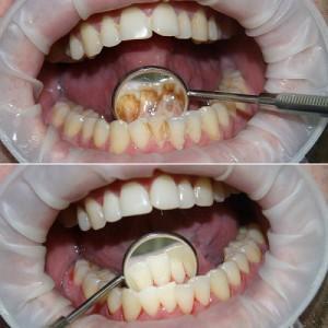 Профессиональная чистка зубов, обзор методов и клиник Москвы с акциями