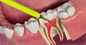 Пломбирование корневых каналов зубов - методы и стоимость в Москве