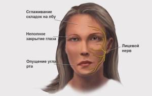 Неврит лицевого нерва: лечение, симптомы, причины