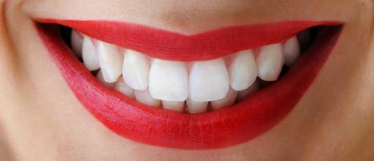 Можно ли отбеливать зубы с коронками