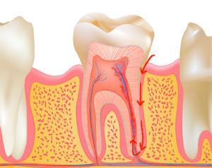Лечение периодонтита в Ивантеевке в стоматологии Денталь