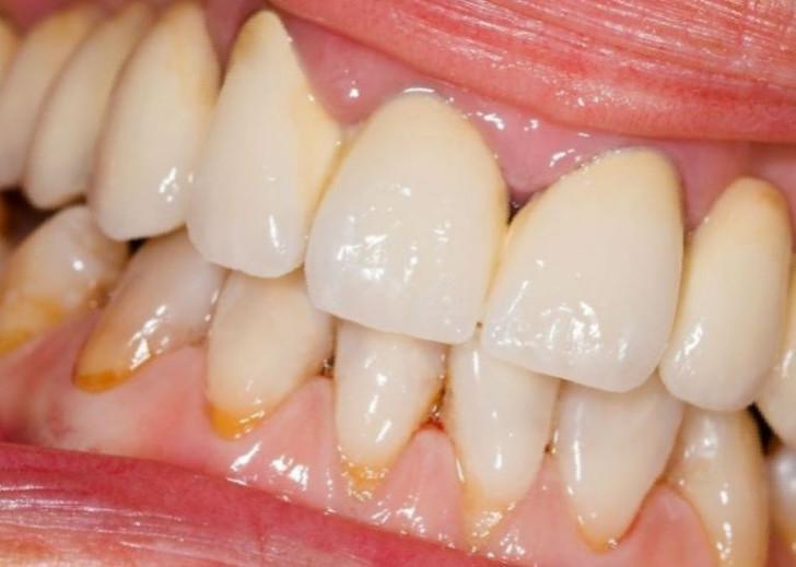 Хронический и острый катаральный гингивит особенности лечения