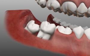 Можно ли ставить металлокерамику на жевательные зубы